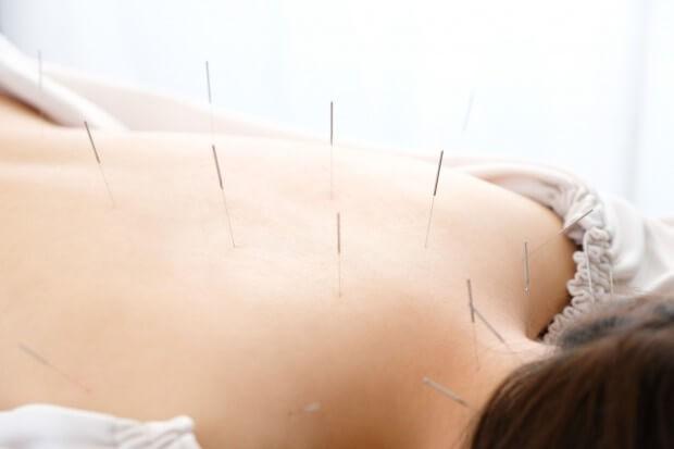背中に鍼を刺している女性