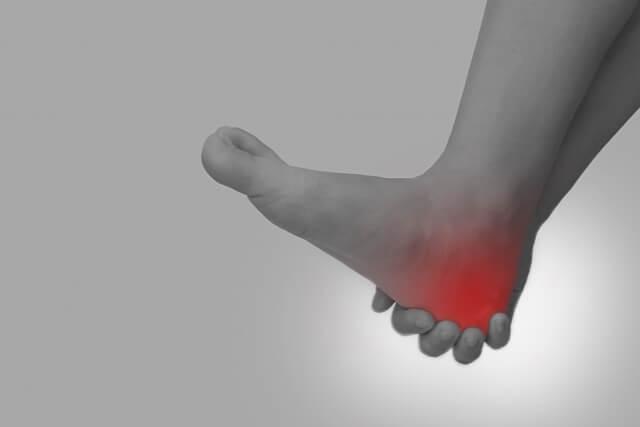 足底筋膜炎のイメージ